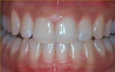Gusi yaitu bab dari kesehatan gigi dan lisan yang sering diabaikan atau sering tidak  Pengertian Gusi, Jenis, dan Ciri-cirinya