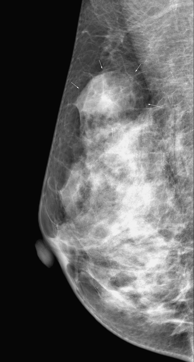My Beadialogy Dolce And Gabbana Fall 2012 Rtw Part2: MY E-RADIOLOGY CASES: CASE 281 : 40 Year-old Woman With