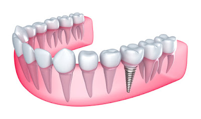 Nhung ai can phai cay rang su co dinh implant