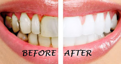 whitening-teeth-is-safe-or-not