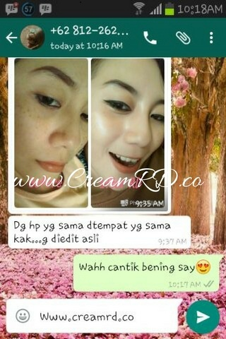 Testimonial Review Cream RD