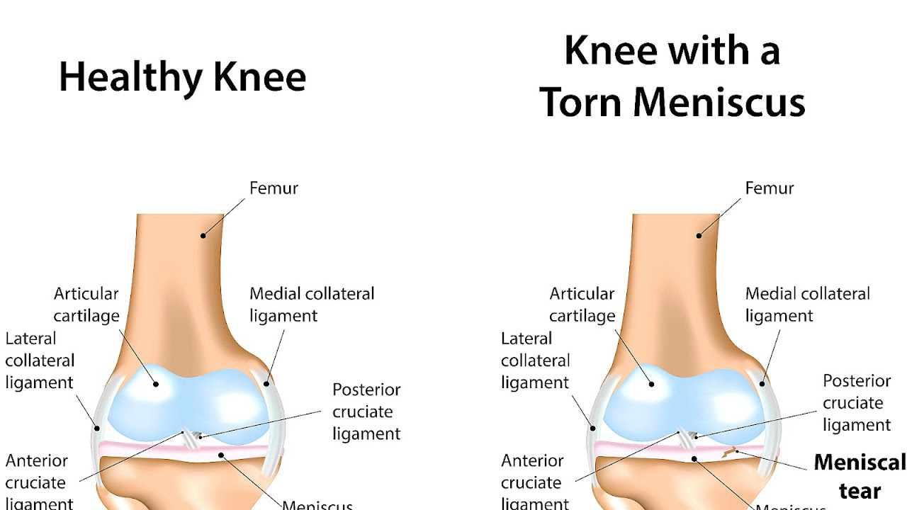 small resolution of tear of meniscus injury choices jpg 1280x720 meniscus injury