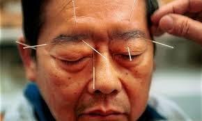 Makalah Artikel Tentang Akupunktur 2014