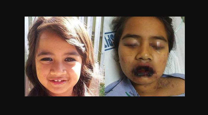 Awalnya dikira Demam Biasa, Lalu Kondisi Gadis ini Semakin Parah, Faktanya Mengerikan