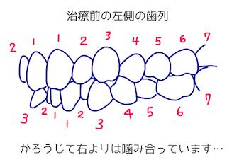 ©さんがつの歯科矯正を始めます 歯科矯正13回目の調整 歯のイラスト