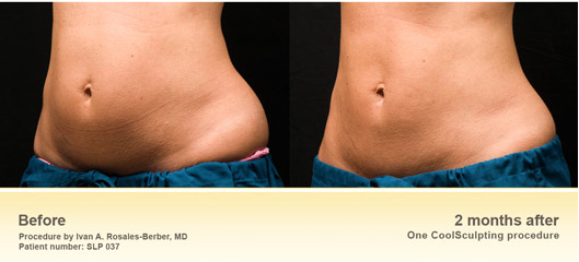 Screen+Shot+2013-12-13+at+2.19.44+PM Are You a Good Candidate for CoolSculpting?Other