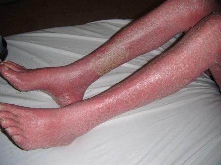 Psoriasis Eritrodermica Tratamiento