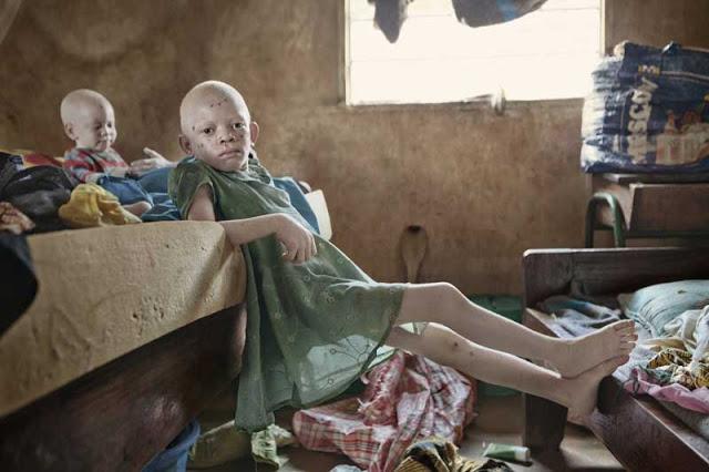 Mira el infierno que viven los albinos en África. Son el platillo más caro del mundo… 2