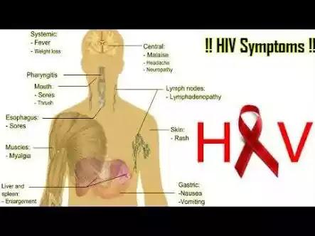 main symptoms of AIDS in hindi