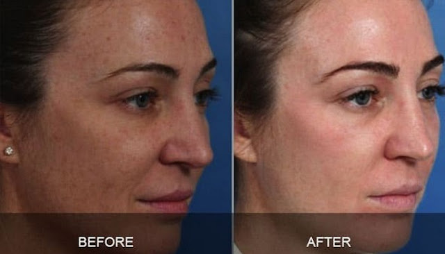 buy Zo Skin Care Before And After