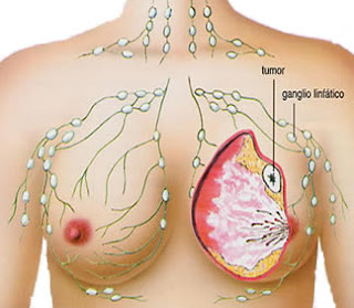 Cara Herbal Mengatasi Kanker Payudara Parah, Cara Herbal Mengatasi Kanker Payudara, Kanker Payudara Stadium 4 Sembuh dengan Sirsak