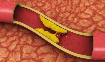 Cara Alami dan Mudah Menurunkan Kolesterol yang Tinggi