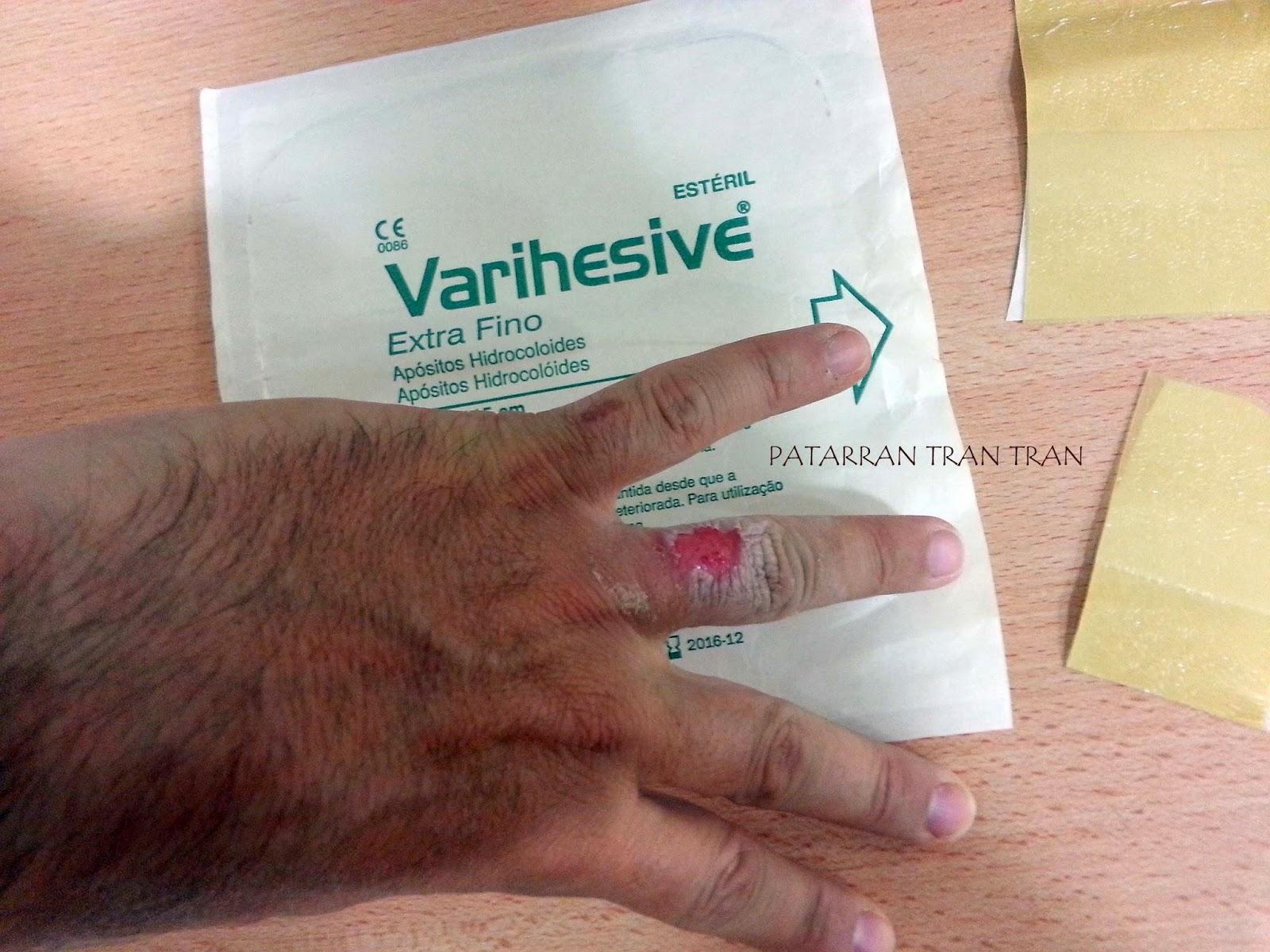 Los apositos hidrocolides. Varihesive.