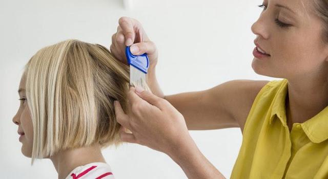 cara membasmi kutu rambut dengan kapur ajaib