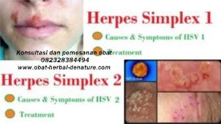 obat herpes kelamin,obat herpes zoster,obat cacar dompo,obat cacar air,obat herpes kemaluan,obat herpes tangan,obat herpes bibir,obat herpes badan