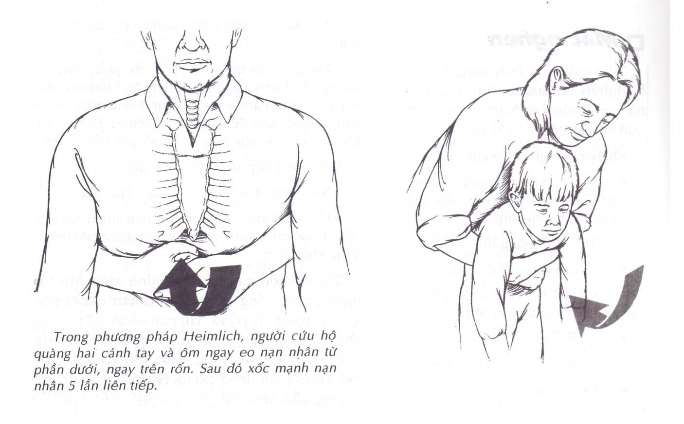 Cách dùng phương pháp Heimlich để chữa nghẹn