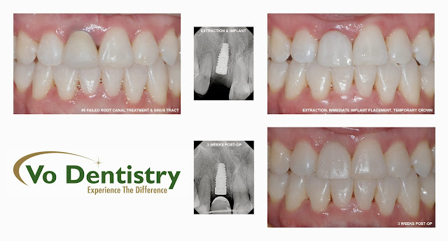 Immediate Implant, Cosmetic Dentistry, same day implant, same day crown, Lawrenceville, Norcross, Lilburn, Dacula, buford, duluth, snellville, hamilton mill, grayson, sugar hill, sugar loaf, GA, Georgia