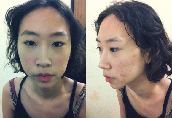 짱이뻐! - Feel Like Being A Real Woman After Korea Two Jaw Surgery