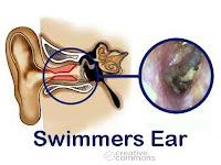 Obat Alami Radang Telinga Tengah