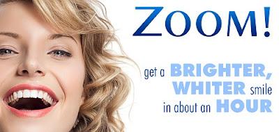 các phương pháp tẩy trắng răng hiện nay -4