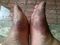 Obat Alami Hilangkan Gatal Bernanah Di Telapak Kaki