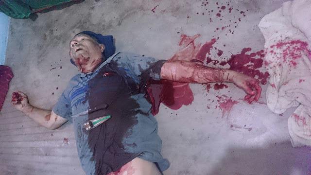 Assaltante estupra adolescente e é morto a facadas pelo pai da garota