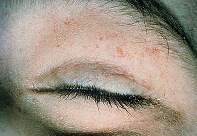 Petechial rash  Ortho atlas