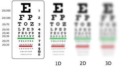 Cara Mengobati Mata Minus Atau Plus