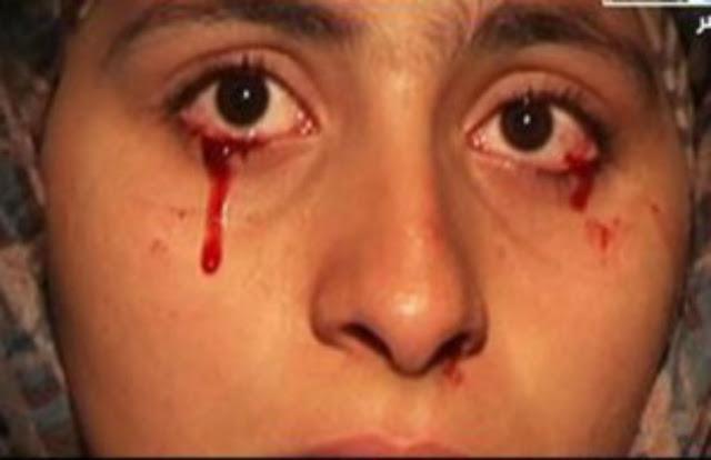 هام جدا للنساء| هل يمكن ان تيكي العين بدل الدموع دماء وما الذي يمكنني فعله ان حدث مثل ذلك؟! تعرفي علي الاجابات