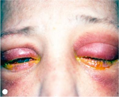 conjuntivitis virica recurrente
