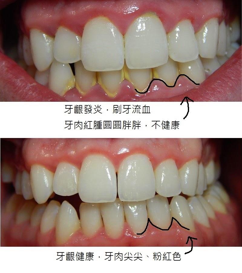 TONY牙醫隨寫: 刷牙流血怎麼辦?
