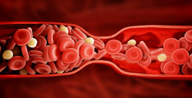 5 Makanan Alami Pengencer Darah Untuk Mengurangi Pembekuan Darah dan Resiko Stroke