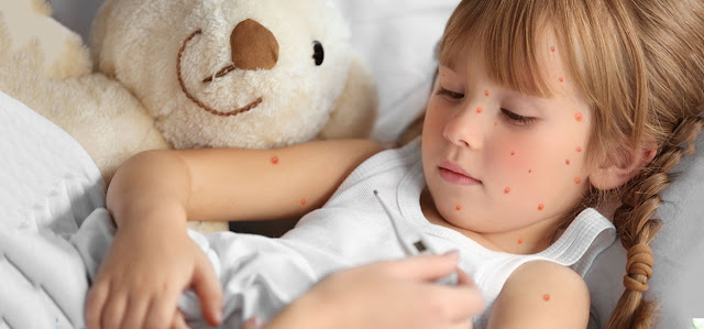 Chicken Pox Symptoms, Treatment and Home Remedies