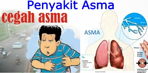 Tips dan Pencegahan Penyakit Asma
