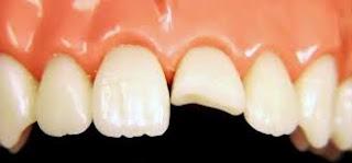 Có nên hàn răng bị vỡ một nửa không?