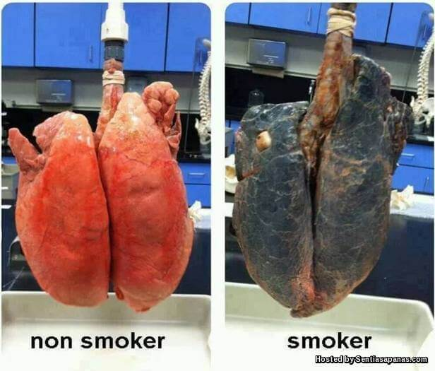 Smokers-Lung