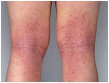 Cara Mengobati Dermatitis Atopik