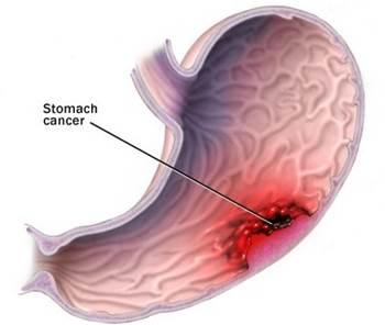 Pengobatan Herbal Kanker Lambung Akut Dan Kronis