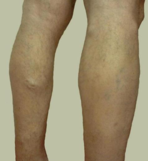 5 remedios caseros para las piernas hinchadas