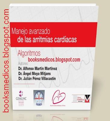 Manejo avanzado de las arritmias cardíacas | booksmedicos