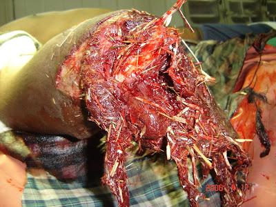 fodder machine hand wound
