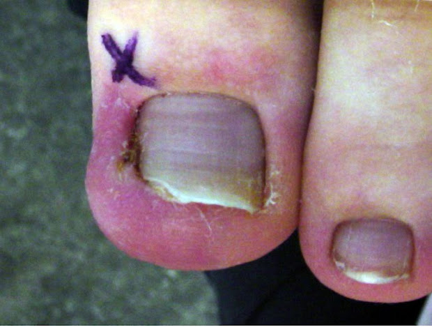 august 2008 ingrown toenail
