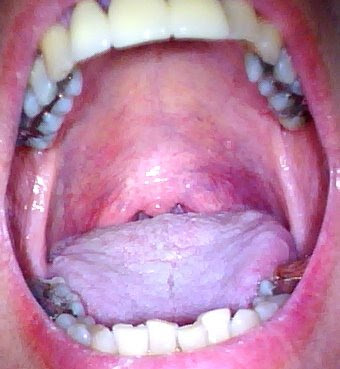 Bump On Roof Of Mouth After Eating Certain Foods