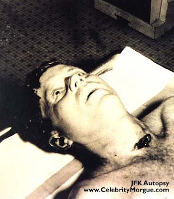 John F Kennedy Autopsy
