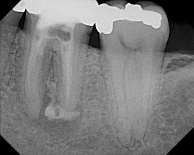 Graduate Endodontics