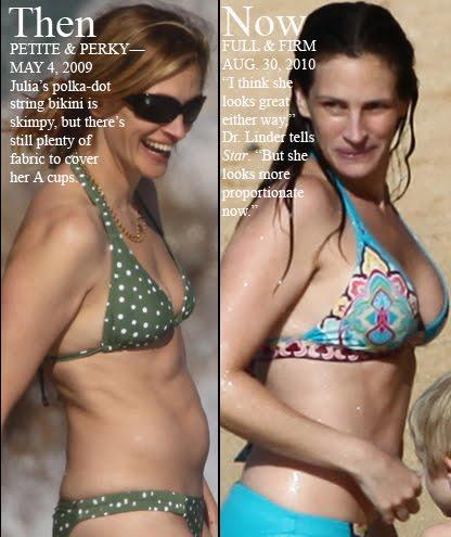 Rachel Brosnahan Breast Implants