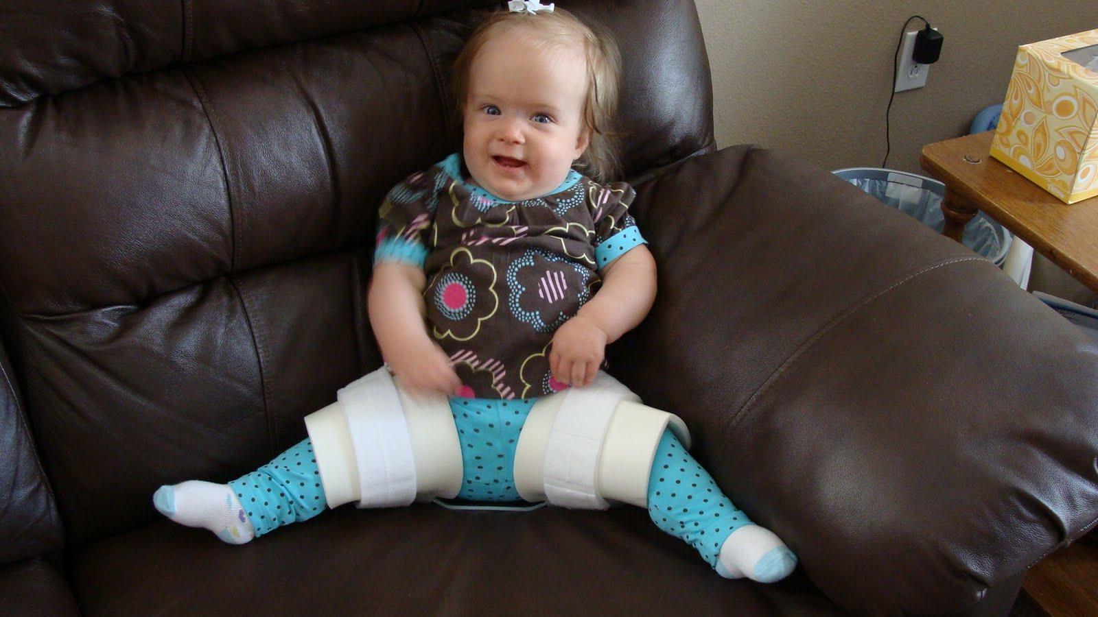 Hip Dysplasia Car Seat
