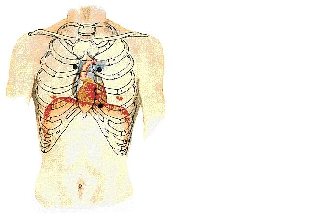 Diagram Of The Human Heart on 2009 Cancer Asbestos Diagram Of Heart Mesothelioma