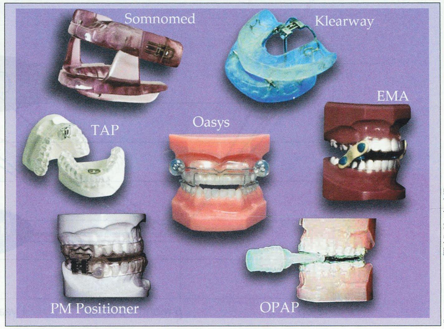 Oral Appliances to Help Correct Obstructive Sleep Apnea (OSA