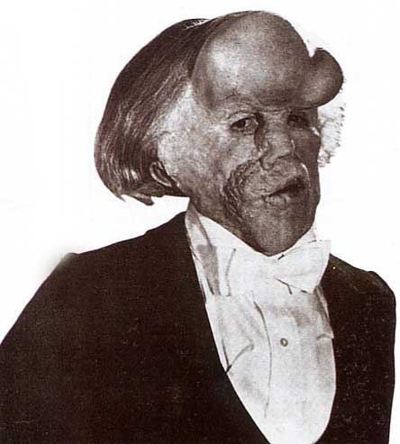 What Then Is This Child Going To Be?: Elephant Man